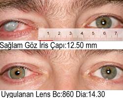 Açık Yeşil İris Kontakt Lens