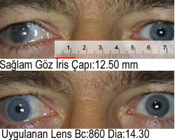 Açık Mavi Prosthetic Kontakt Lens