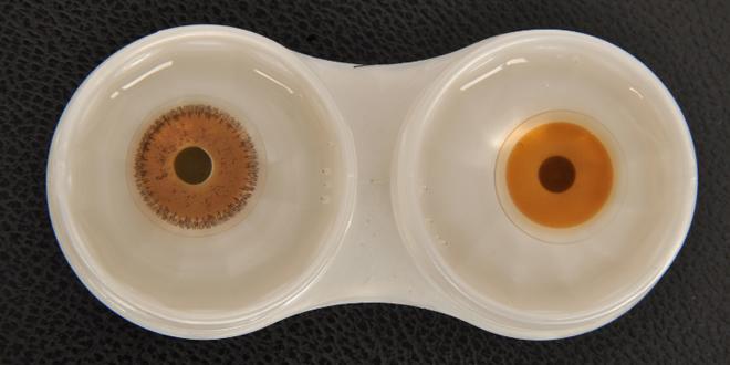 prostetik-lens-bakim
