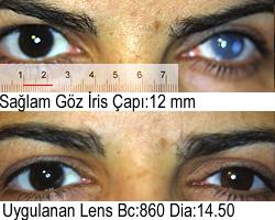 Koyu Kahve Prosthetic Kontakt Lens