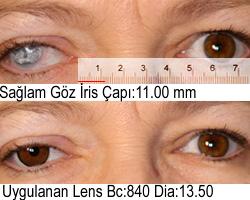 Orta Kahve Prosthetic Kontakt Lens