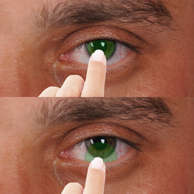 kontakt-lens-nasil-çıkartilir